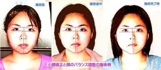 顔の歪み矯正の施術例