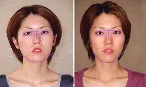 顔の歪み矯正の術前術後