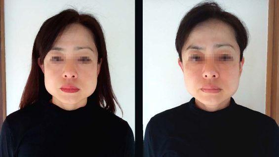 小顔矯正の術前術後