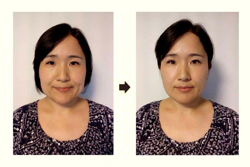 小顔矯正の施術例